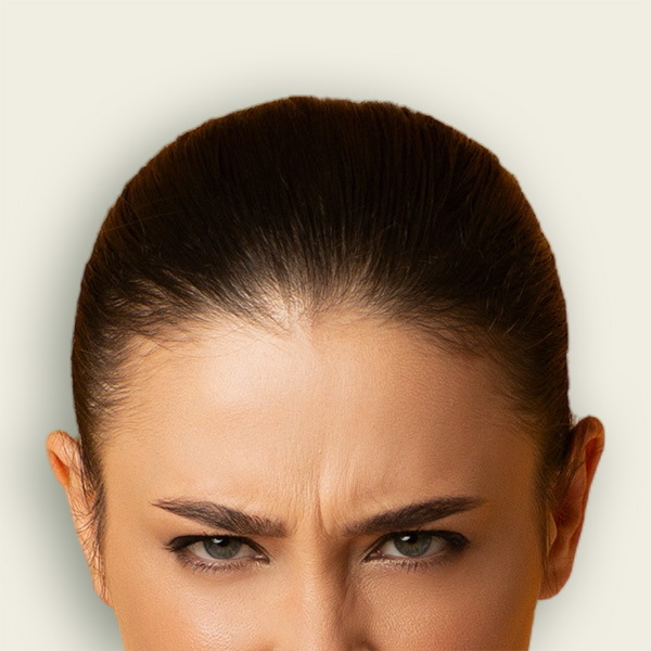 אישה עם קמטי כעס