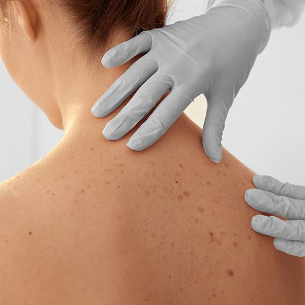 אישה עם סימני פיגמנטציה על העור