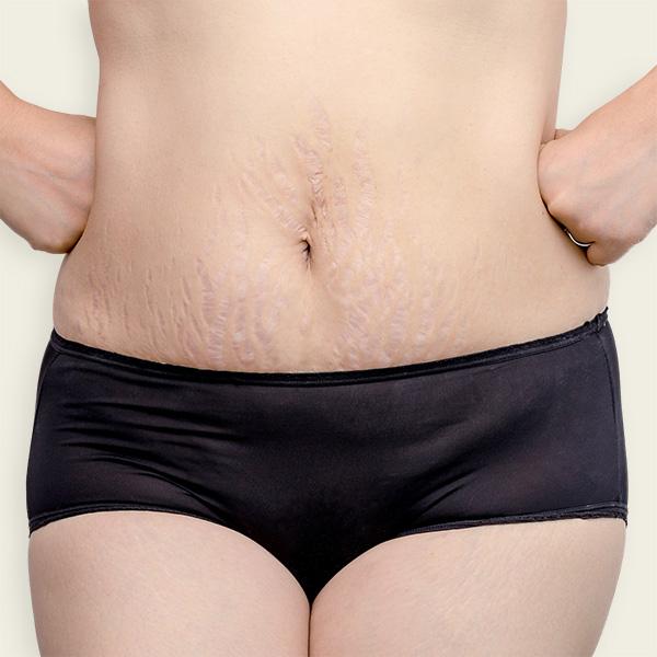 אישה עם סימני מתיחה על הבטן