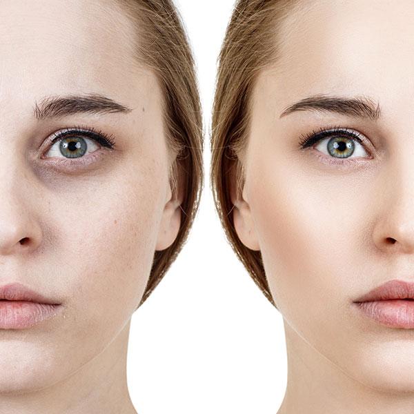 אישה עם שקעים בעיניים לפני ואחרי טיפול