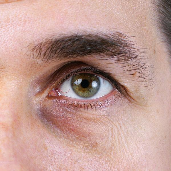 גבר עם שקעים בעיניים